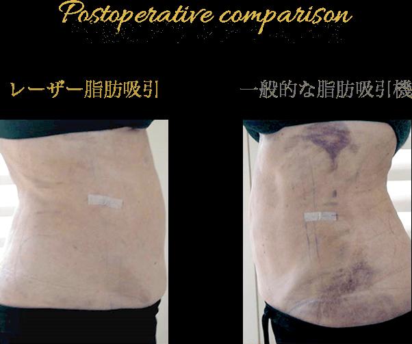 術後のダウンタイム比較 レーザー脂肪吸引 一般的な脂肪吸引機